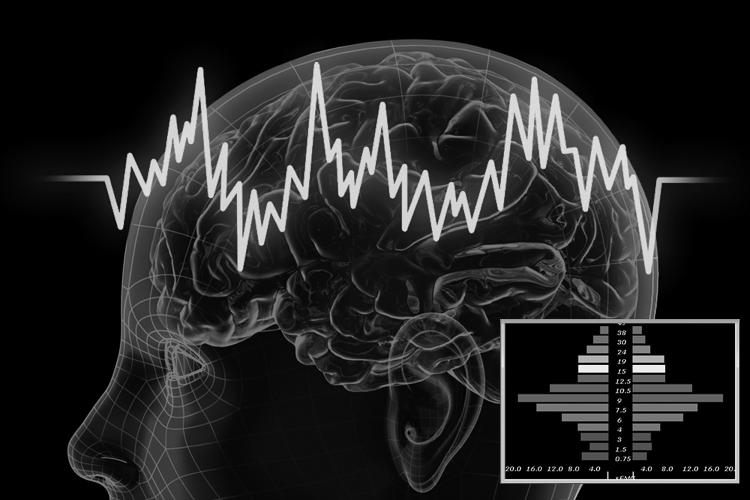 EEG registratie systeem